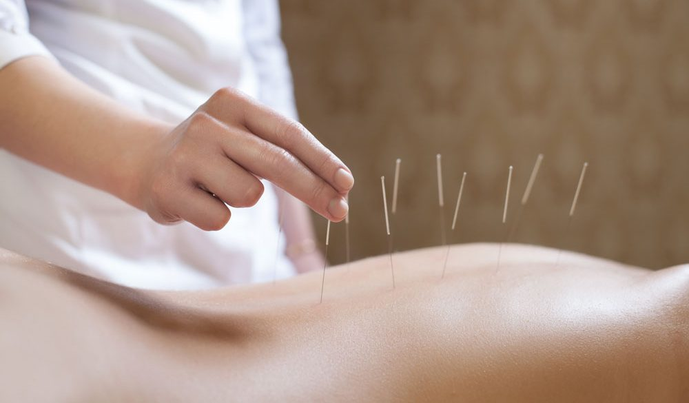 How Acupuncture Can Help You With Weight Loss
