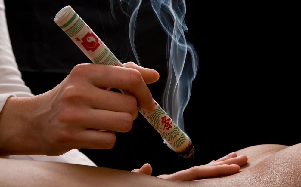 moxibustion for infertility
