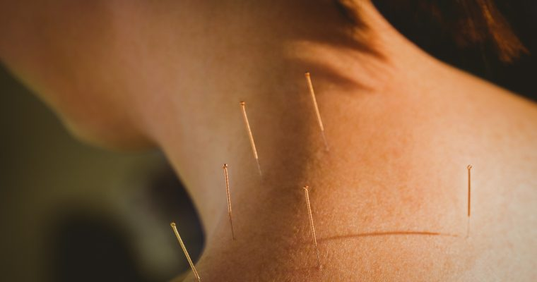 WHICH CONDITIONS CAN ACUPUNCTURE HELP WITH